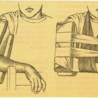 Fístulas, Fisura palatina, Flujo Vaginal, Fontanelas, Fracturas, Forúnculo