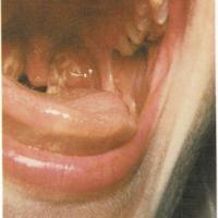 Gammaglobulina, Ganglios, Garganta, Glándulas, Gripe, Grupos sanguíneos