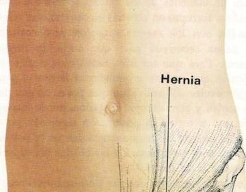 Hernia, Herpes, Hidrocefalia, Hidrocele, Hipo, Hipermetropía, Histeria, Humidificación