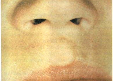 Labio leporino, Laringitis, Laxantes, Leucemia, Lombriz intestinal, Lunares