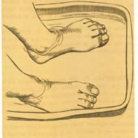 Úlceras bucales, Uñas, Urticaria